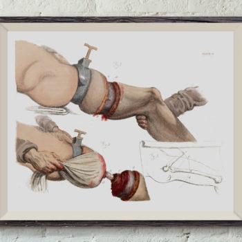 Illustration of a Leg Amputation - 1821, Victorian Medical Art Print, Vintage Science Print, Anatomy Sketch,  Medical student gift