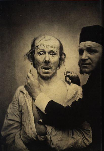 Guillaume_Duchenne_de_Boulogne_performing_facial_electrostimulus_experiments_(3) (1)