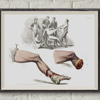Illustration of a Foot Amputation - 1821, Victorian Medical Art Print, Anatomy Sketch,  Medical student gift, Professor and Teacher Gift