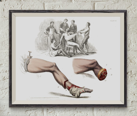 illustration-of-a-foot-amputation-1821-victorian-medical-art-print-anatomy-sketch-medical-student-gift-professor-and-teacher-gift-5ab5f4a01.jpg