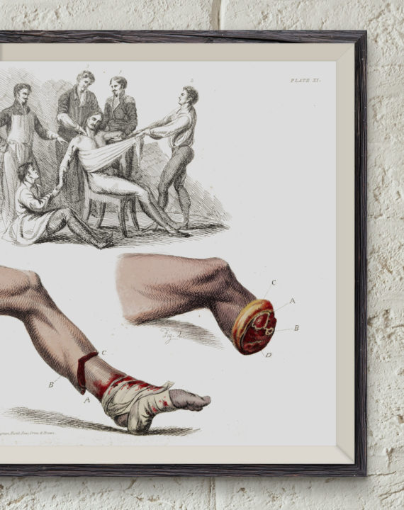 illustration-of-a-foot-amputation-1821-victorian-medical-art-print-anatomy-sketch-medical-student-gift-professor-and-teacher-gift-5ab5f4a63.jpg