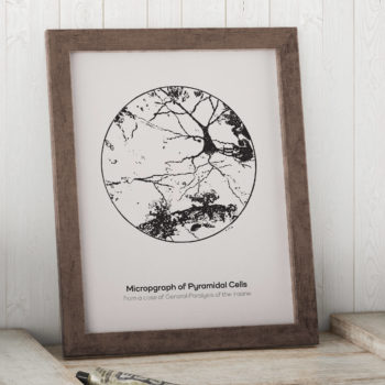 Micrograph of Pyramidal neurons in the Hippocampus from an Insane Person - Vintage Science Art, Neuron Print - Neurology Gift Canvas Art