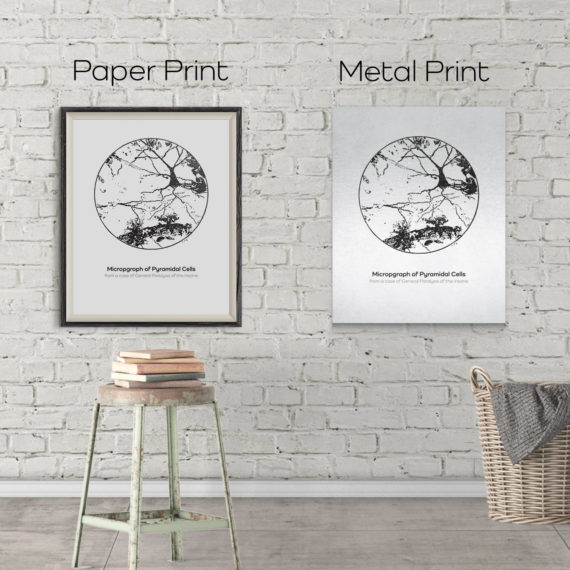 micrograph-of-pyramidal-neurons-in-the-hippocampus-from-an-insane-person-vintage-science-art-neuron-print-neurology-gift-canvas-art-5ab5e9a22.jpg