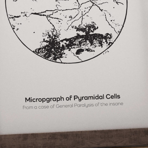 micrograph-of-pyramidal-neurons-in-the-hippocampus-from-an-insane-person-vintage-science-art-neuron-print-neurology-gift-canvas-art-5ab5e9b46.jpg